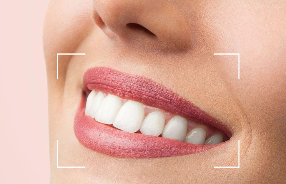Keçiören Diş Hekimi Ankara Diş Hekimi İmplant Protez
